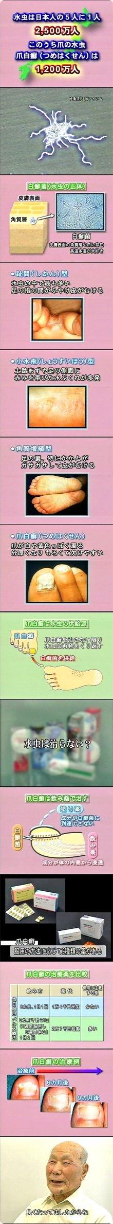 水虫 指の間 皮がむける