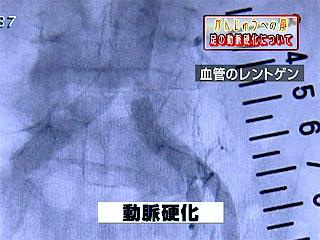 09-11-11repo001.jpg