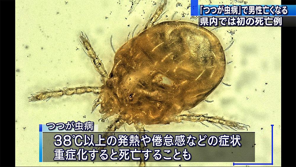 「つつが虫病」で県内初の死亡例